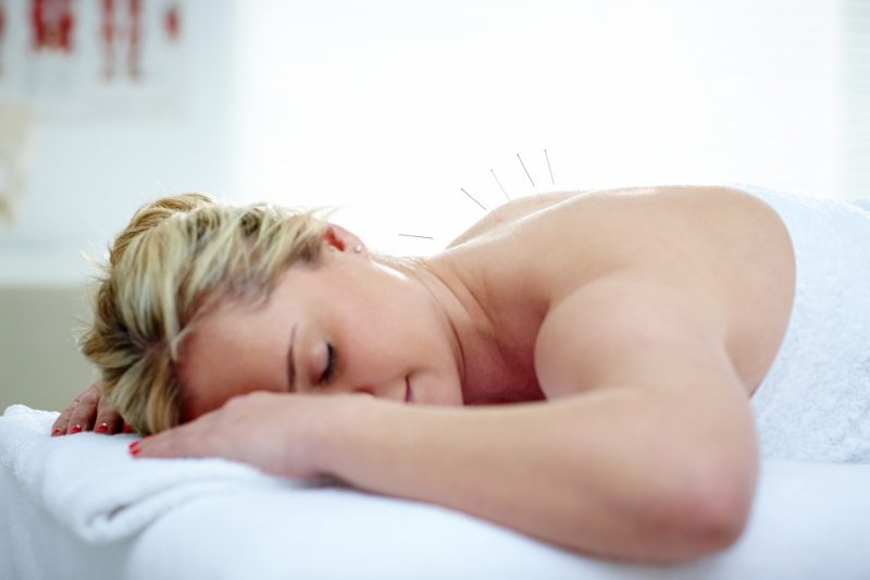 Woman receiving acupuncture needles on her back to boost fertility